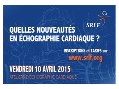 20150410-Echographie-cardiaque